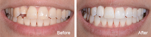 Smiles Philadelphia Lee 1 - Invisalign Abington PA