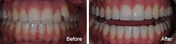 Smiles Philadelphia Margaret 2 2 - Invisalign Northeast Philadelphia PA